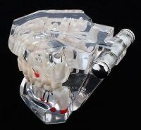 Модели верхней и нижней челюстей с патологией и протезами