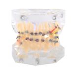 Демонстрационная модель зубов (для ортодонтов)